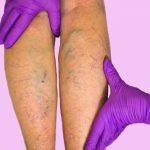 Cosa sono e come si curano le vene varicose