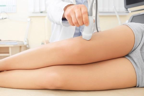 tecniche all'avanguardia cura vene varicose