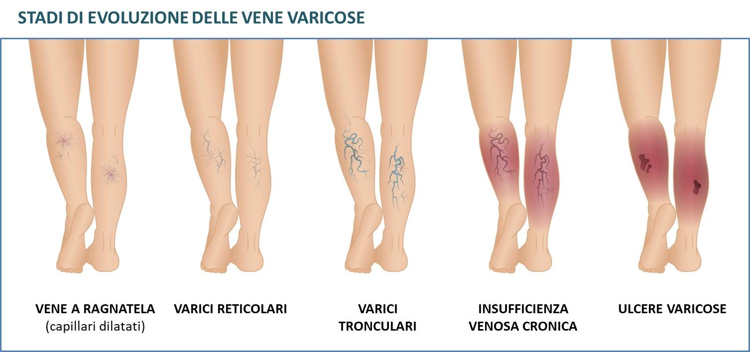 tipologie vene varicose