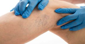 vene varicose capillari